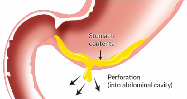 peptic ulcer - perforation